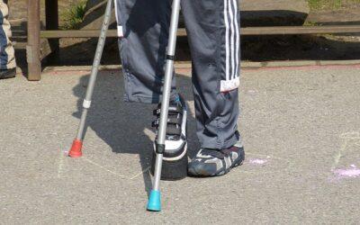 Falsa gamba corta: ce ne parla Fabio Rizzo