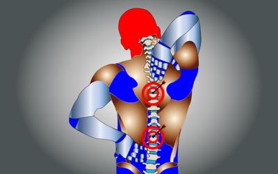 Mal di schiena: cause, rimedi, esercizi